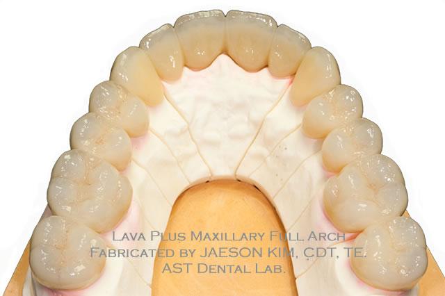 AST Dental
